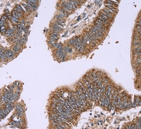 Immunohistochemistry (Formalin/PFA-fixed paraffin-embedded sections) - Anti-Interferon alpha 2 antibody (ab198914)