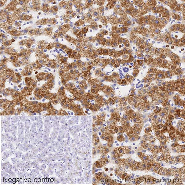 Immunohistochemistry (Formalin/PFA-fixed paraffin-embedded sections) - Anti-CPS1 antibody [EPR7493-3] (HRP) (ab198969)