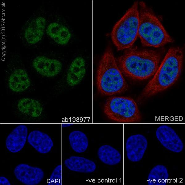 Immunocytochemistry/ Immunofluorescence - Anti-CGBP antibody [EPR19199] - ChIP Grade (ab198977)