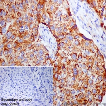 Immunohistochemistry (Formalin/PFA-fixed paraffin-embedded sections) - Anti-Annexin-7/ANXA7 antibody [EPR16173] - N-terminal (ab198990)