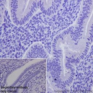 Immunohistochemistry (Formalin/PFA-fixed paraffin-embedded sections) - Anti-Loricrin antibody [EPR7149(2)] - C-terminal (ab198994)