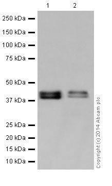 Western blot - Anti-RCN1/RCN antibody [EPR17163] - C-terminal (ab198996)