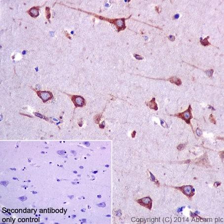 Immunohistochemistry (Formalin/PFA-fixed paraffin-embedded sections) - Anti-RCN1/RCN antibody [EPR17163] - C-terminal (ab198996)