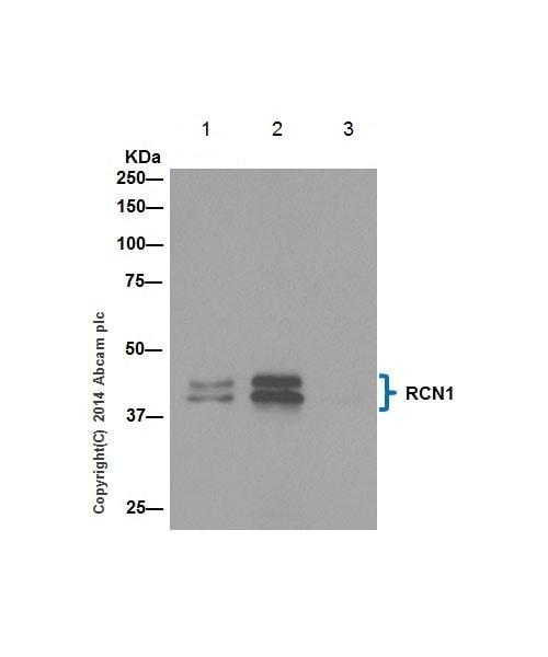 Immunoprecipitation - Anti-RCN1/RCN antibody [EPR17163] - C-terminal (ab198996)