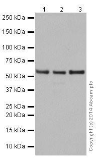 Western blot - Anti-PRPF4 antibody [EPR17207] - C-terminal (ab198998)