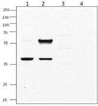 Western blot - Anti-XBP1 antibody (ab198999)