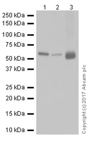 Western blot - Anti-Chk2 antibody [EPR19236] (ab199031)
