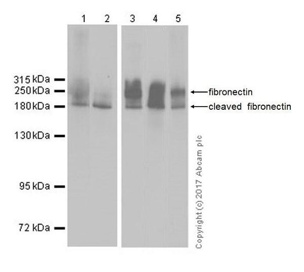 Western blot - Anti-Fibronectin antibody [EPR19241-46] (ab199056)
