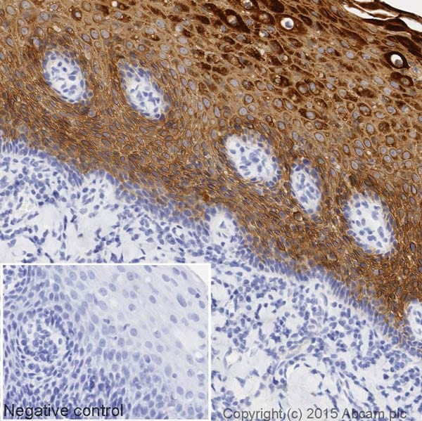 Immunohistochemistry (Formalin/PFA-fixed paraffin-embedded sections) - HRP Anti-Cytokeratin 13 antibody [EPR3671] (ab199092)