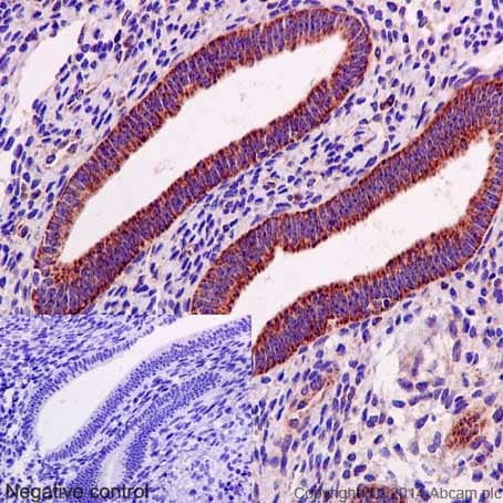 Immunohistochemistry (Formalin/PFA-fixed paraffin-embedded sections) - Anti-Bcl-XL antibody [E18] - BSA and Azide free (ab199099)