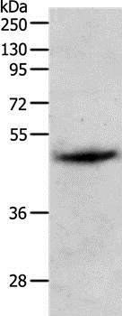 Western blot - Anti-PGA5 antibody (ab199112)