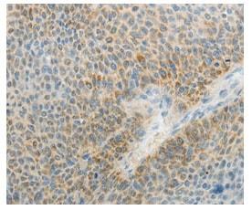 Immunohistochemistry (Formalin/PFA-fixed paraffin-embedded sections) - Anti-AGAP1 antibody (ab199136)