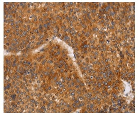 Immunohistochemistry (Formalin/PFA-fixed paraffin-embedded sections) - Anti-CD38 antibody - C-terminal (ab199137)