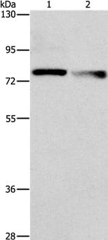 Western blot - Anti-NEK11 antibody - C-terminal (ab199144)