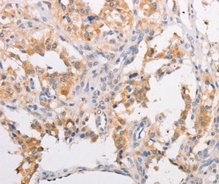 Immunohistochemistry (Formalin/PFA-fixed paraffin-embedded sections) - Anti-MYLK3/MLCK antibody - N-terminal (ab199158)
