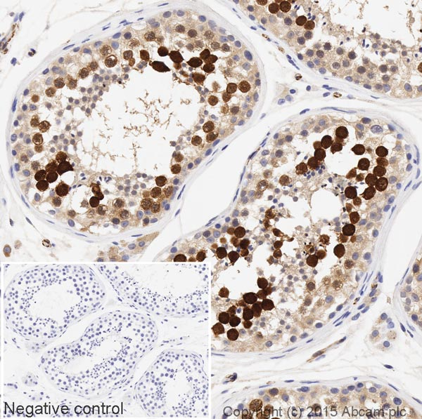 Immunohistochemistry (Formalin/PFA-fixed paraffin-embedded sections) - Anti-Securin antibody [EPR3240] (HRP) (ab199239)