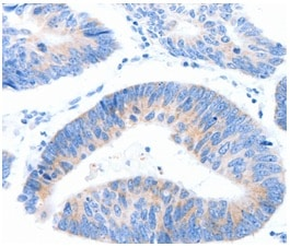 Immunohistochemistry (Formalin/PFA-fixed paraffin-embedded sections) - Anti-MUC3A antibody (ab199260)