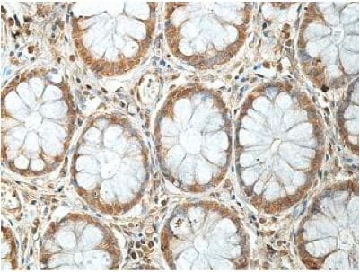 Immunohistochemistry (Formalin/PFA-fixed paraffin-embedded sections) - Anti-BCMO1 antibody (ab199272)