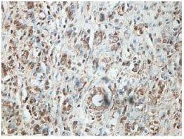 Immunohistochemistry (Formalin/PFA-fixed paraffin-embedded sections) - Anti-FN3K-RP antibody (ab199276)