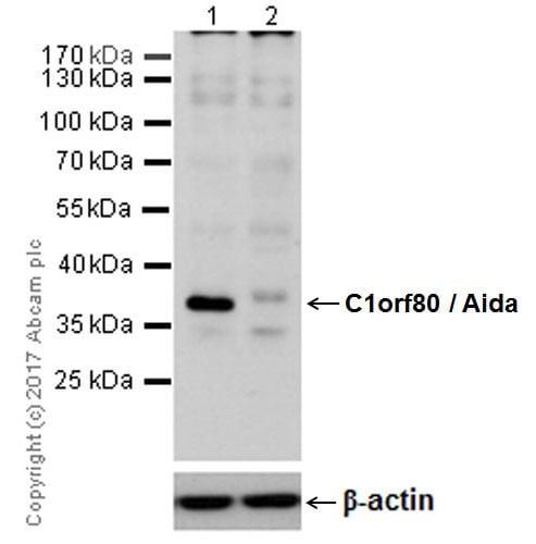 Western blot - Anti-AIDA antibody [EPR19161] (ab199323)
