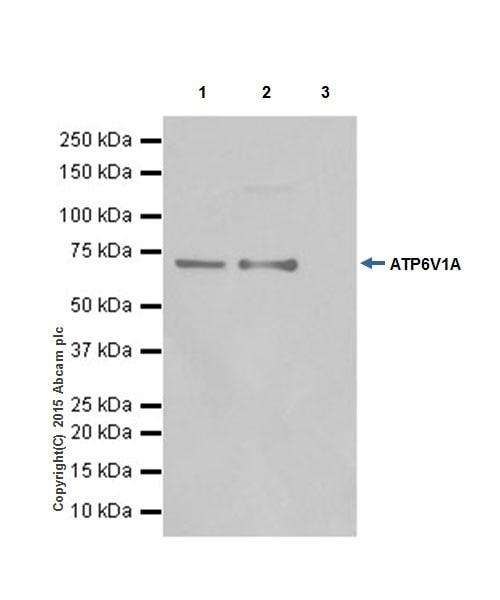 Immunoprecipitation - Anti-ATP6V1A antibody [EPR19271] (ab199325)
