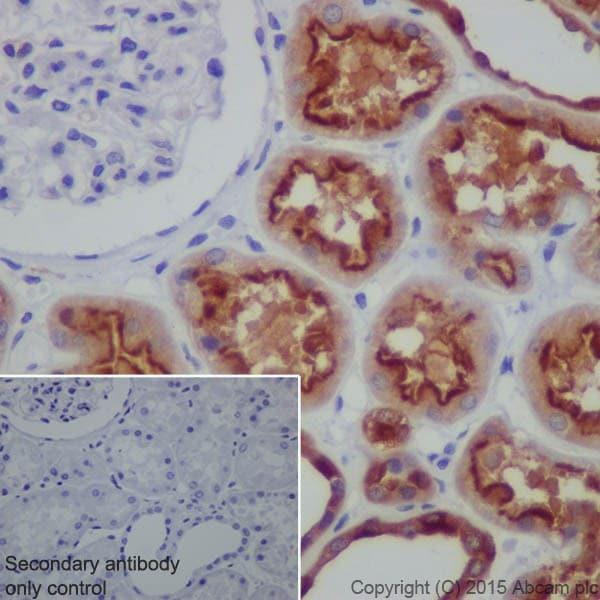 Immunohistochemistry (Formalin/PFA-fixed paraffin-embedded sections) - Anti-ATP6V1A antibody [EPR19271] (ab199325)