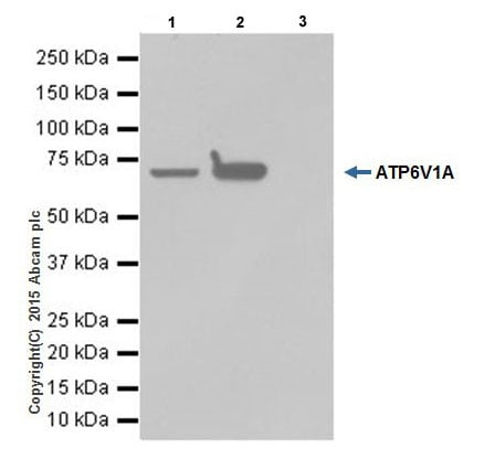 Immunoprecipitation - Anti-ATP6V1A antibody [EPR19270] (ab199326)
