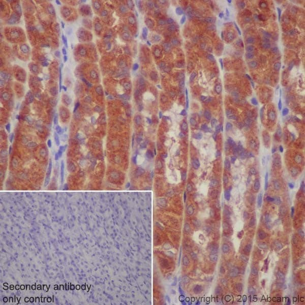 Immunohistochemistry (Formalin/PFA-fixed paraffin-embedded sections) - Anti-ATP6V1A antibody [EPR19270] (ab199326)