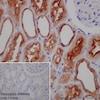 Immunohistochemistry (Formalin/PFA-fixed paraffin-embedded sections) - Anti-ATP6V1A antibody [EPR19270] (ab199326)