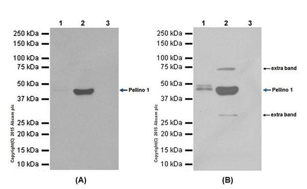Immunoprecipitation - Anti-Pellino 1 antibody [EPR19302] (ab199336)