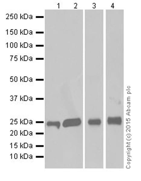 Western blot - Anti-GSTT1 antibody [EPR19283] (ab199337)