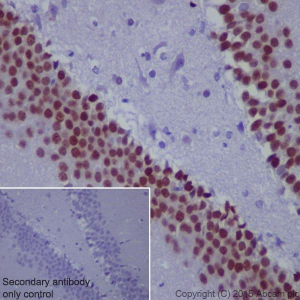 Immunohistochemistry (Formalin/PFA-fixed paraffin-embedded sections) - Anti-PROX1 antibody [EPR19273] (ab199359)