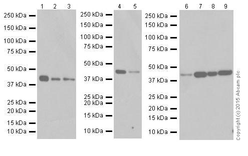 Western blot - Anti-SMYD3 antibody [EPR19311] (ab199361)