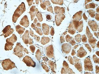 Immunohistochemistry (Formalin/PFA-fixed paraffin-embedded sections) - Anti-gamma Actin antibody (ab199406)