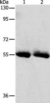 Western blot - Anti-Sodium Iodide Symporter antibody - N-terminal (ab199410)