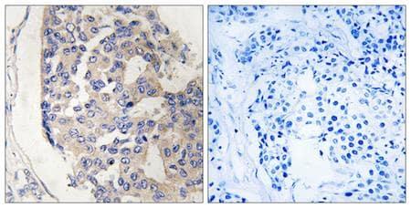 Immunohistochemistry (Formalin/PFA-fixed paraffin-embedded sections) - Anti-C1s antibody (ab199418)