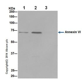 Immunoprecipitation - Anti-Annexin-6/ANXA6 antibody [EPR17308] - N-terminal (ab199422)