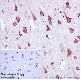 Immunohistochemistry (Formalin/PFA-fixed paraffin-embedded sections) - Anti-SSX2IP antibody [EPR16979] (ab199425)