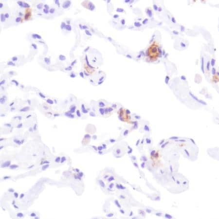 Immunohistochemistry (Formalin/PFA-fixed paraffin-embedded sections) - Anti-CD33 antibody [SP266] (ab199432)