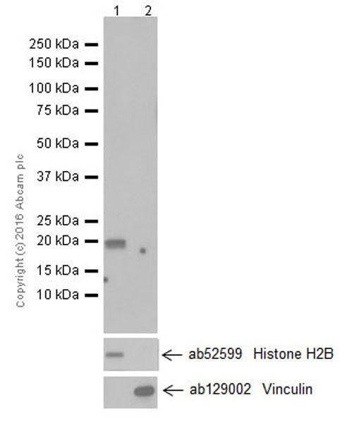 Western blot - Anti-MAX antibody [EPR19352] (ab199489)