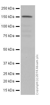 Western blot - Anti-NUP155 antibody [EPR17111] (ab199528)