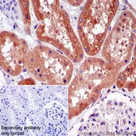 Immunohistochemistry (Formalin/PFA-fixed paraffin-embedded sections) - Anti-RAB5C/RABL antibody [EPR17321] (ab199530)