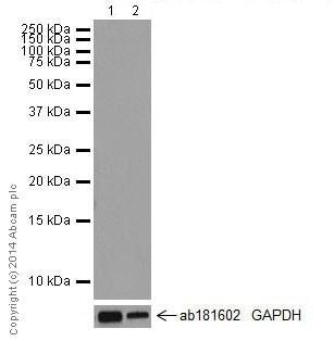 Western blot - Anti-RON antibody [EPR16789] (ab199532)