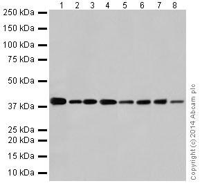 Western blot - Anti-GNAQ antibody [EPR17149] (ab199533)