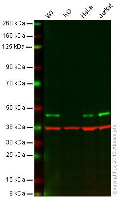 Western blot - Anti-ATG4B antibody [EPR16572] (ab199537)