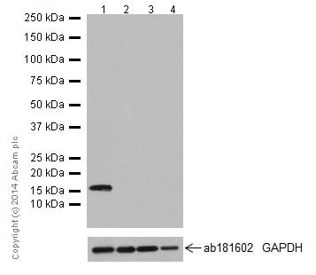 Western blot - Anti-Map17 antibody [EPR16827] (ab199540)