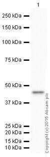 Western blot - HRP Anti-HLA A antibody [EP1395Y] (ab199555)