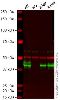 Western blot - Anti-HLA A antibody [EP1395Y] (HRP) (ab199555)