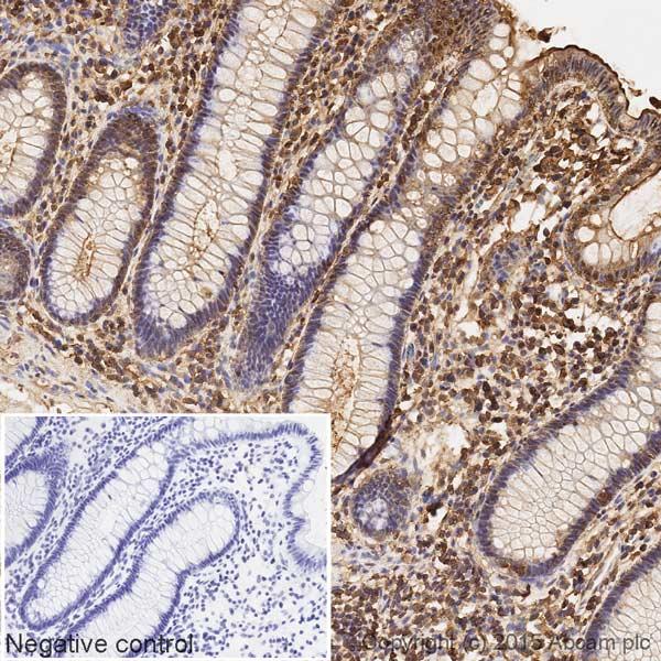 Immunohistochemistry (Formalin/PFA-fixed paraffin-embedded sections) - Anti-Calmodulin 1/2/3 antibody [EP799Y] (HRP) (ab199558)