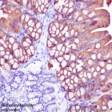 Immunohistochemistry (Formalin/PFA-fixed paraffin-embedded sections) - Anti-Cytokeratin 7 antibody [EPR17079] (ab199718)